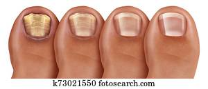 Fungal Nail Infection Recovery