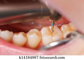 Dental drilling